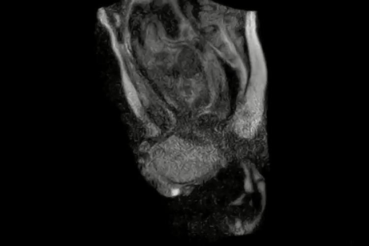 Video: Baby's birth caught in beautiful/harrowing MRI clip ...